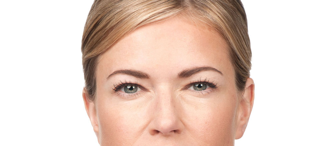After-Anti Wrinkle